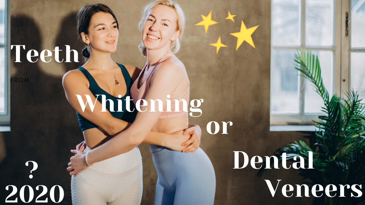 teeth whitening or dental veneers