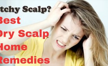 10 dry scalp home remedies